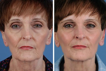 Juvederm Plus before 356494