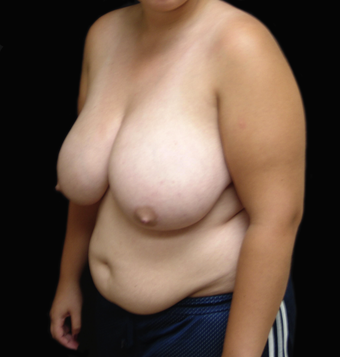 Breast Reduction/Lift and Tummy Liposuction before 230751