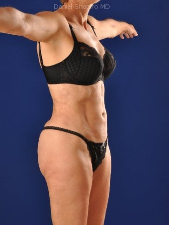 Vaser Hi Def Liposuction of abdomen, thighs, flanks and back with fat injections to buttocks 422733
