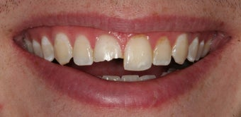 Single tooth veneer after trauma before 112480