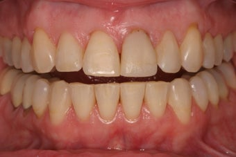 Veneers before 329683