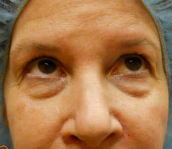 Under-Eye Filler Treatment before 567434