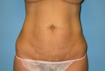 tummy tuck before 287700
