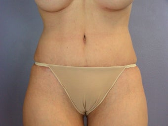 Tummy Tuck after 325636