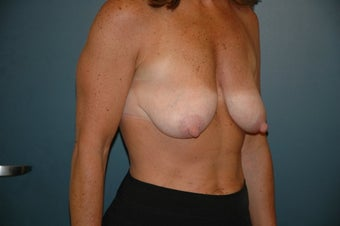 Breast lift before 146265