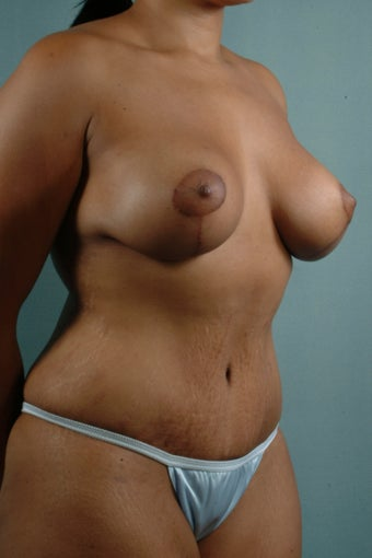 Breast Augmentation with Lift/Tummy Tuck with Liposuction after 241320