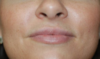 Juvederm Lip Augmentation after 624796
