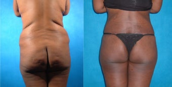 Lower Body Lift with Liposuction and Fat Injections before 134081
