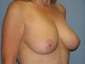 Breast Lift, Breast Reduction 547969