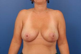 Breast Reduction after 453956