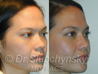 Asian Rhinoplasty after 624582