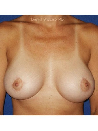 Bilateral periareolar mastopexy augmentation with placement of 421cc smooth silicone breast implants after 249998