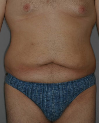 Male Abdominoplasty before 586638