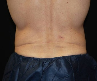 CoolSculpting on love handle and flank areas after 482900