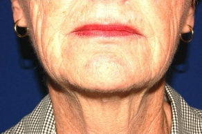 Facelift, Intense Pulsed Light  before 132103