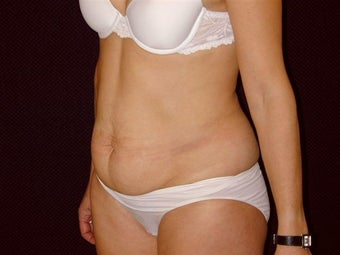 Tummy Tuck and Liposuction before 269291