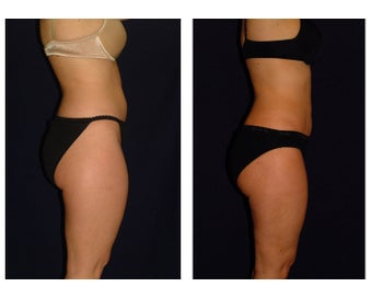 Liposuction before 286646