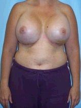 Revision Breast Surgery after 370397