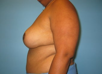 breast reduction after 284100