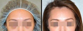 Lower Eyelid(Blepharoplasty) Surgery before 650659