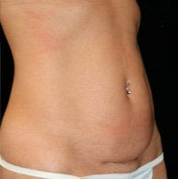 Mini Tummy Tuck before 411082