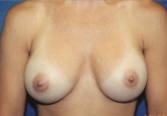 Breast Augmentation after 266795