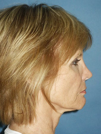 Facelift, Endoscopic Browlift, Upper and Lower Blepharoplasty, Perioral Dermabrasion before 248859