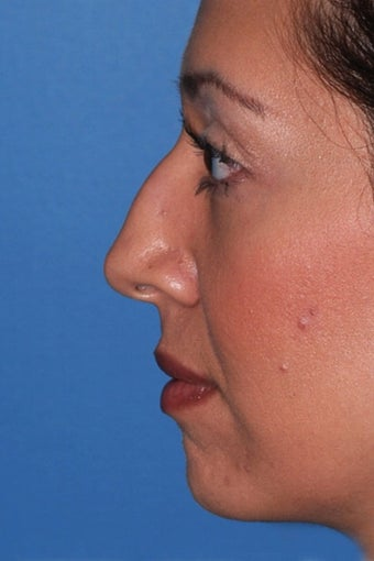 Rhinoplasty before 91601