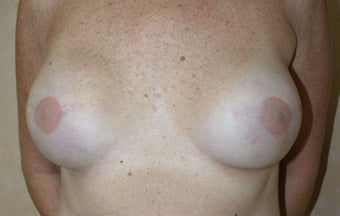 Breast Reconstruction after 526305