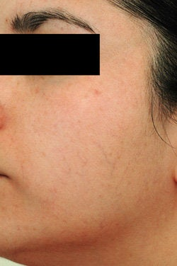 Facial Spider Vein Removal  before 106532