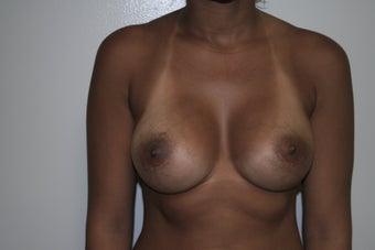 Breast augmentation after 88869