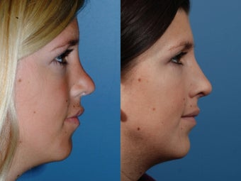 Revision rhinoplasty after 436945