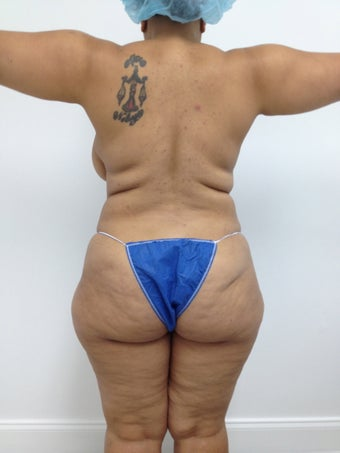 Brazilian Butt Lift 481683