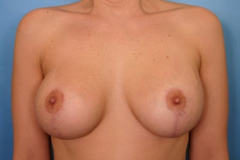 Breast Augmentation and Lift  after 112974