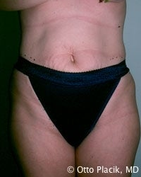 Abdominoplasty before 566565