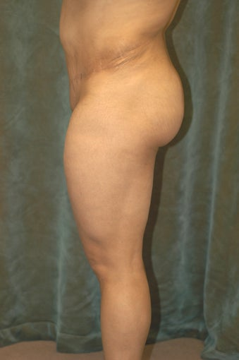 Women's Buttocks Augmentation  after 518138