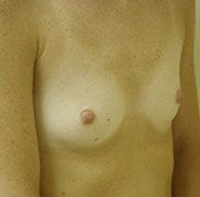 Breast Augmentation before 139578