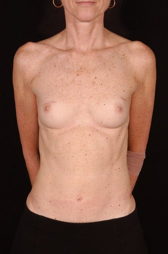 Breast Reconstruction before 163484