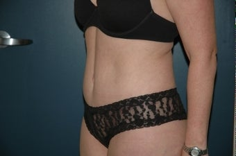 Tummy tuck after 283874