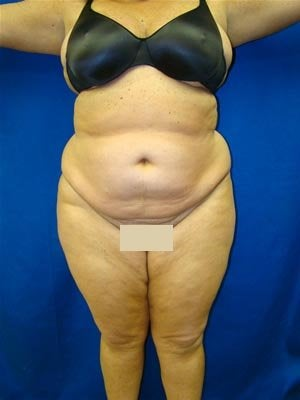 Extended Tummy Tuck, Back Lipectomy before 139078