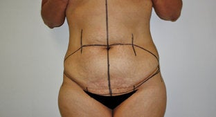 Abdominoplasty before 492039