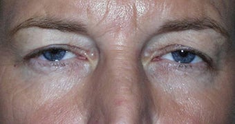 Upper Lid Blepharoplasty before 147715