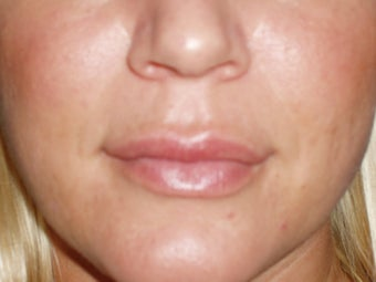 Lip Implants after 198656