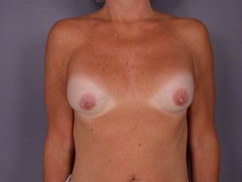 Breast Lift / Breast Augmentation before 291101
