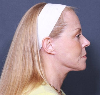 Neck Lift after 384998