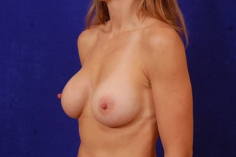 Breast Augmentation after 463748