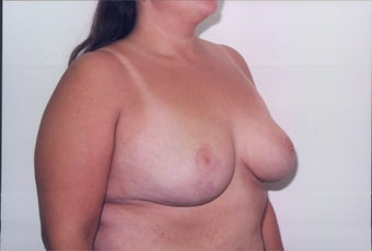Breast Reduction after 218957
