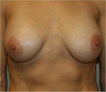 Breast Augmentation after 110453