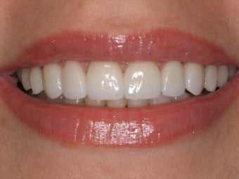 10 Porcelain Veneers after 511425