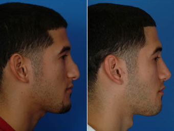 Nose Surgery (Revision Rhinoplasty) after 333096